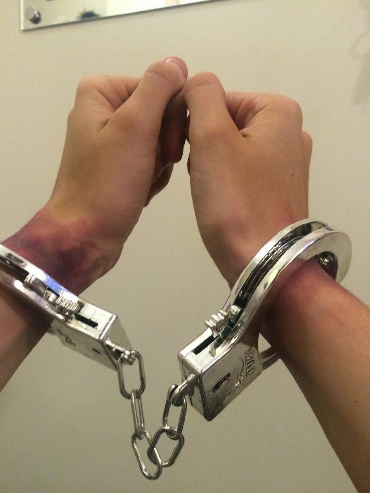 bruising handcuffs